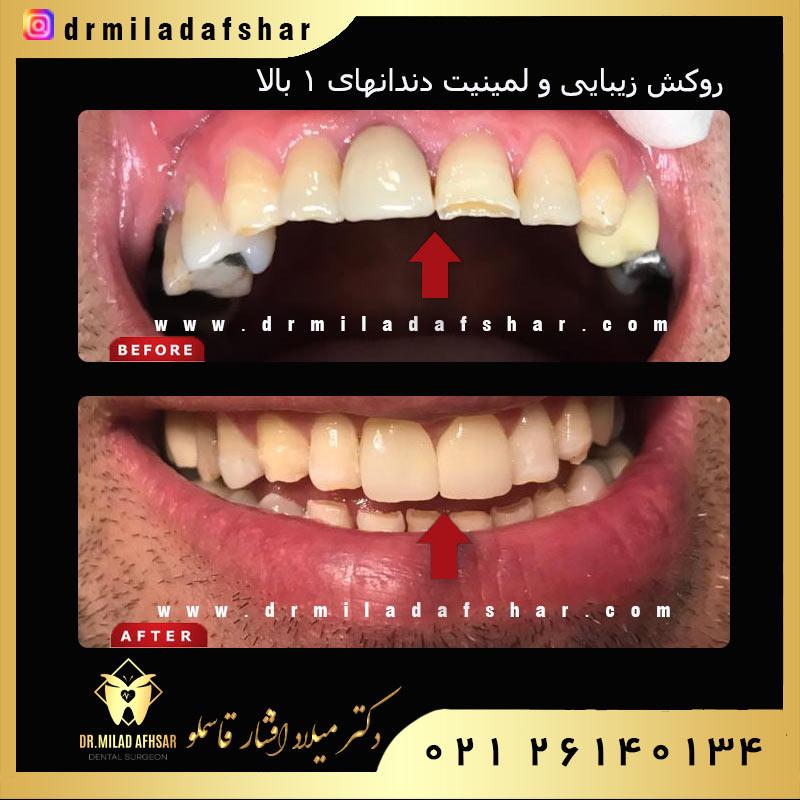 روکش زیبایی و لیمنیت دندان ها