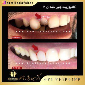 کامپوزیت دندانی