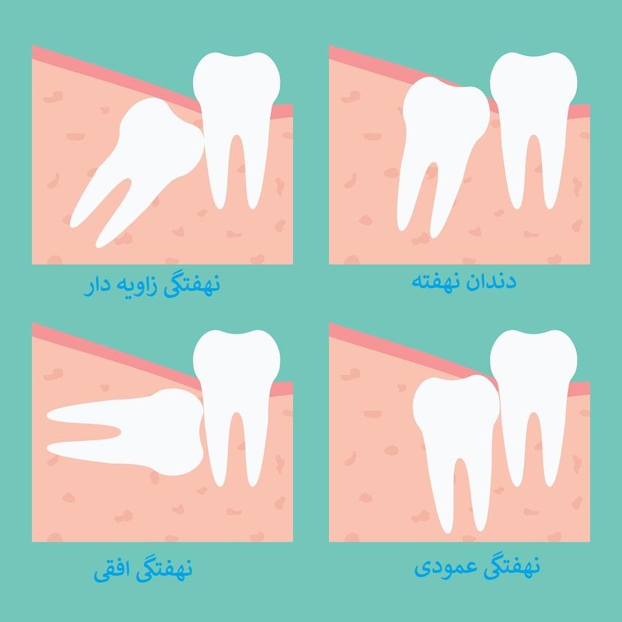 آیا جراحی دندان عقل روی عصب ضروری است دندان عقل نهفته